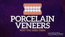 Porcelain Veneers Plainfield il