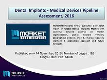 Global Dental Implants Market Analysis, 2016 – 2021