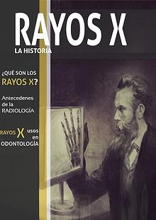 Rayos X: La Historia